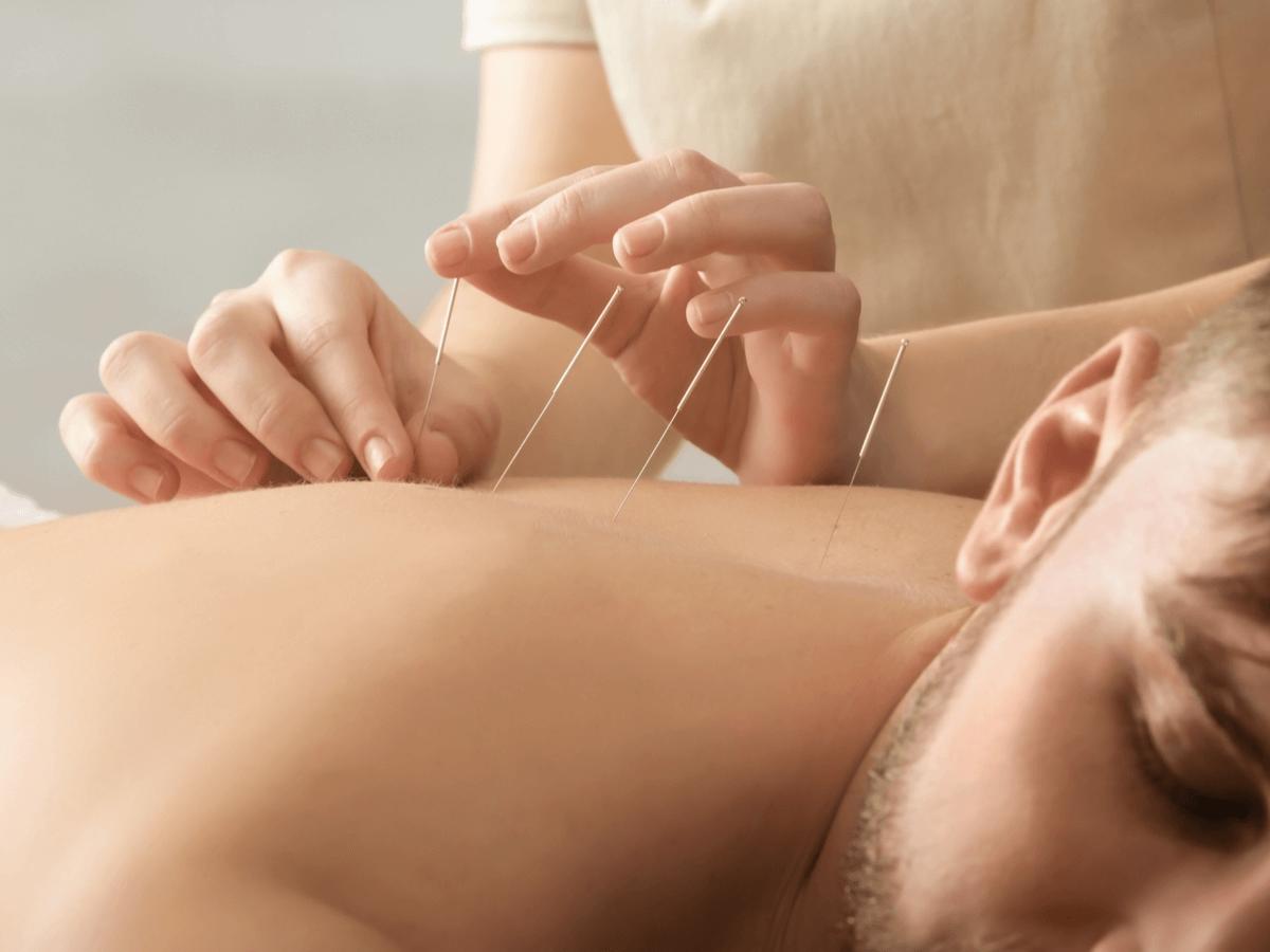 鍼灸師は東洋医学の力で体をサポートする仕事!国家試験の合格率や資格取得の方法について